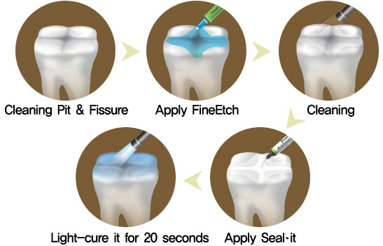 Pit-and-fissure-sealants